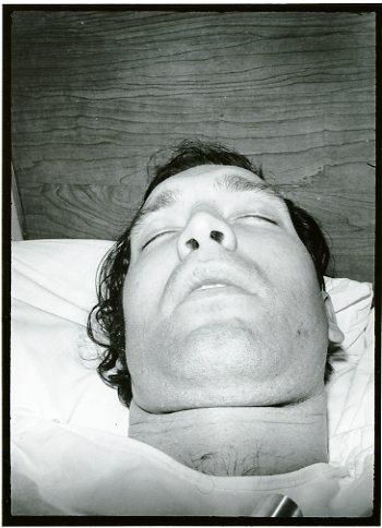 Ear Operation